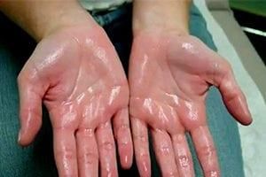 sweaty hands treatment